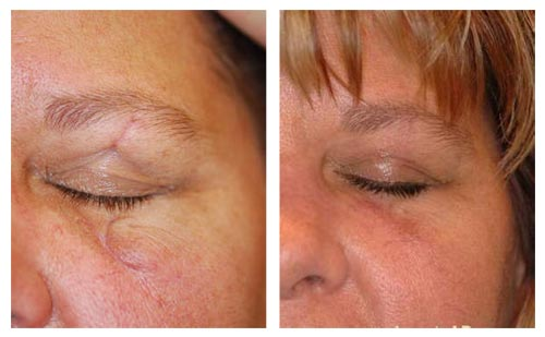 Girls caught in sex pose