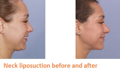 Turns out? Facial smart lipo for that