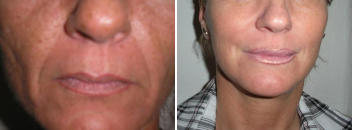 cheek lift before after