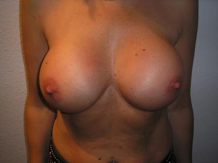Full breast Reconstraction Before