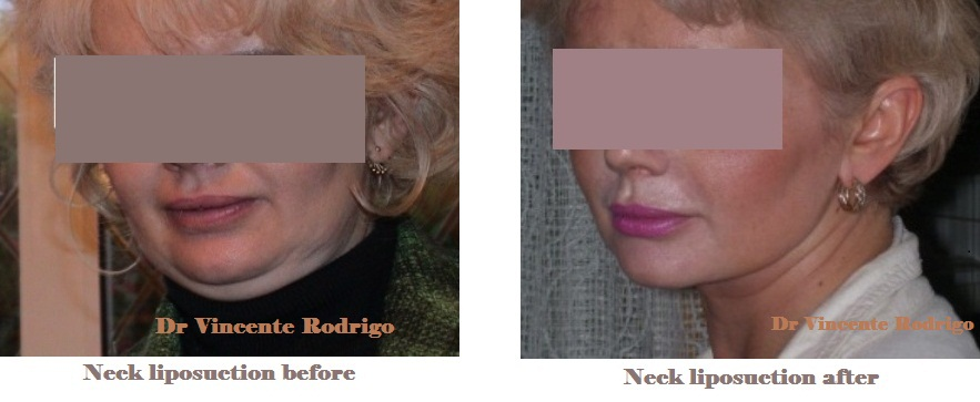 smartlipo of the neck and chin