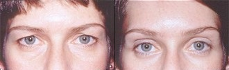 Upper Eyelid Abroad Before and After