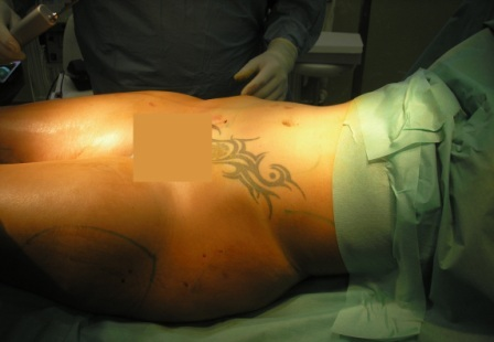 Laser Liposution Picture