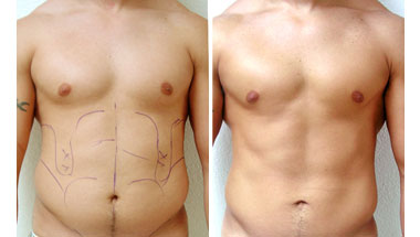 Liposuction for men before and after images