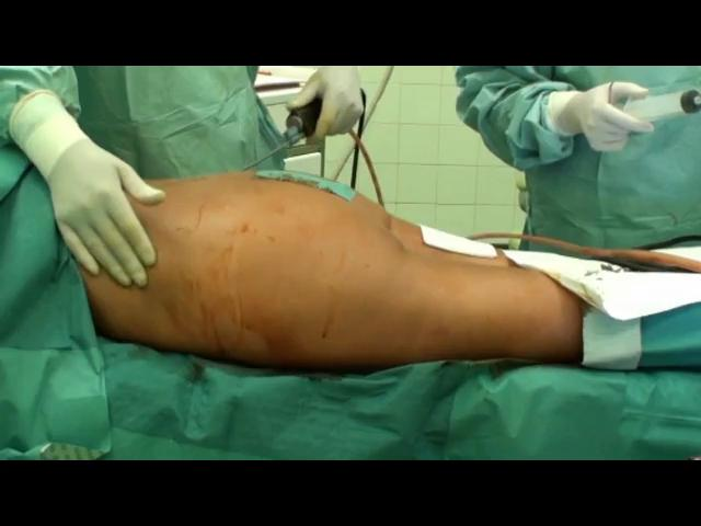 Brazilian Butt Lift Procedure Video