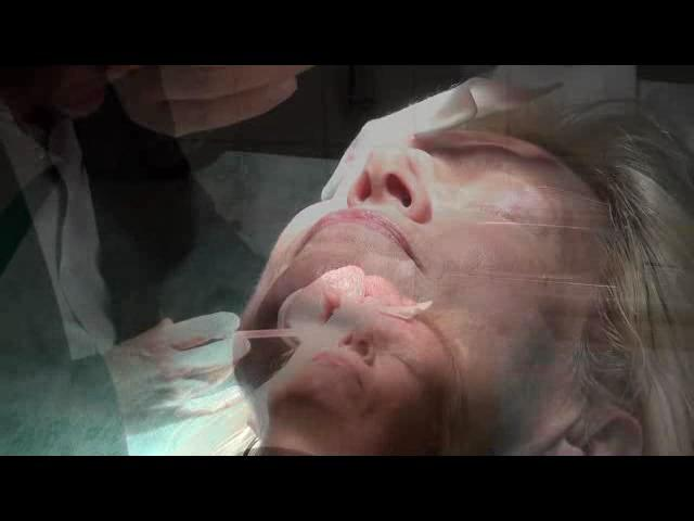 Dermal Fillers - MicroB0T0X Video