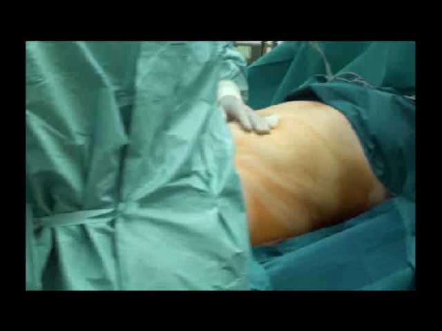Tummy Tuck Procedure Video